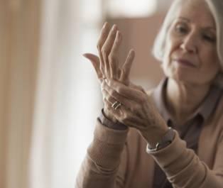 żylaki na dłoniach